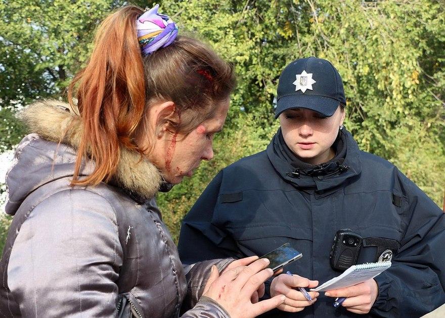 """ДТП в Днепре: водитель на """"Lada"""" сбил велосипедистку (фото, видео)"""