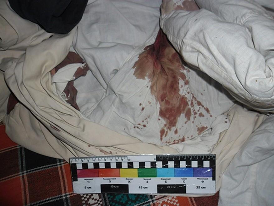 Грабитель ворвался в дом и исполосовал хозяйку ножом (фото)