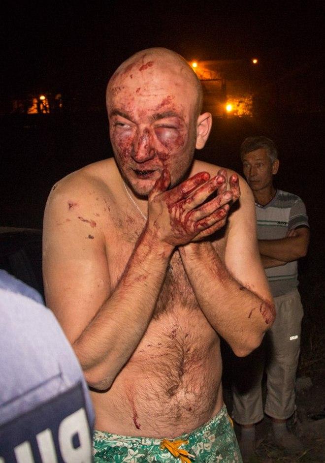 Разборки в Днепре: таксисты избили обидчиков своего товарища (фото, видео)